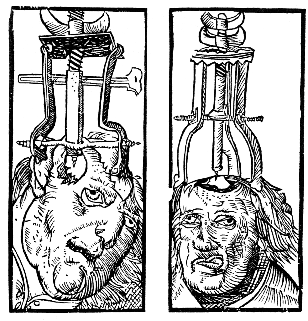 Peter_Treveris_-_engraving_of_Trepanation_for_Handywarke_of_surgeri_1525